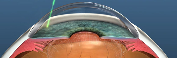 glaucoma-surgery-advances